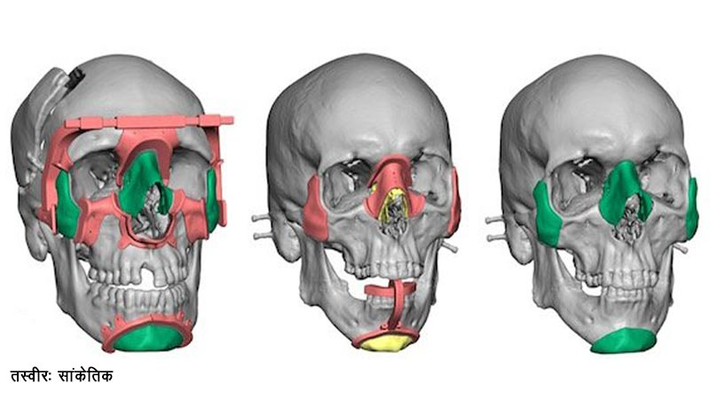 3D Virtual Surgical Planning